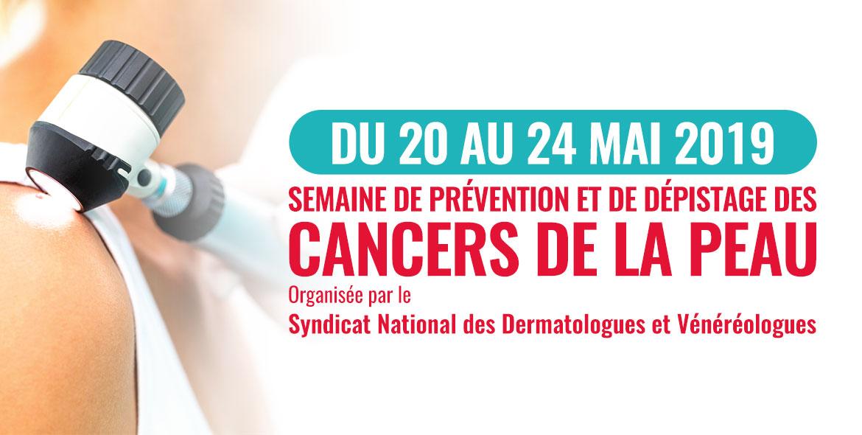 semaine de prévention et de dépistage des cancers de la peau mai 2019