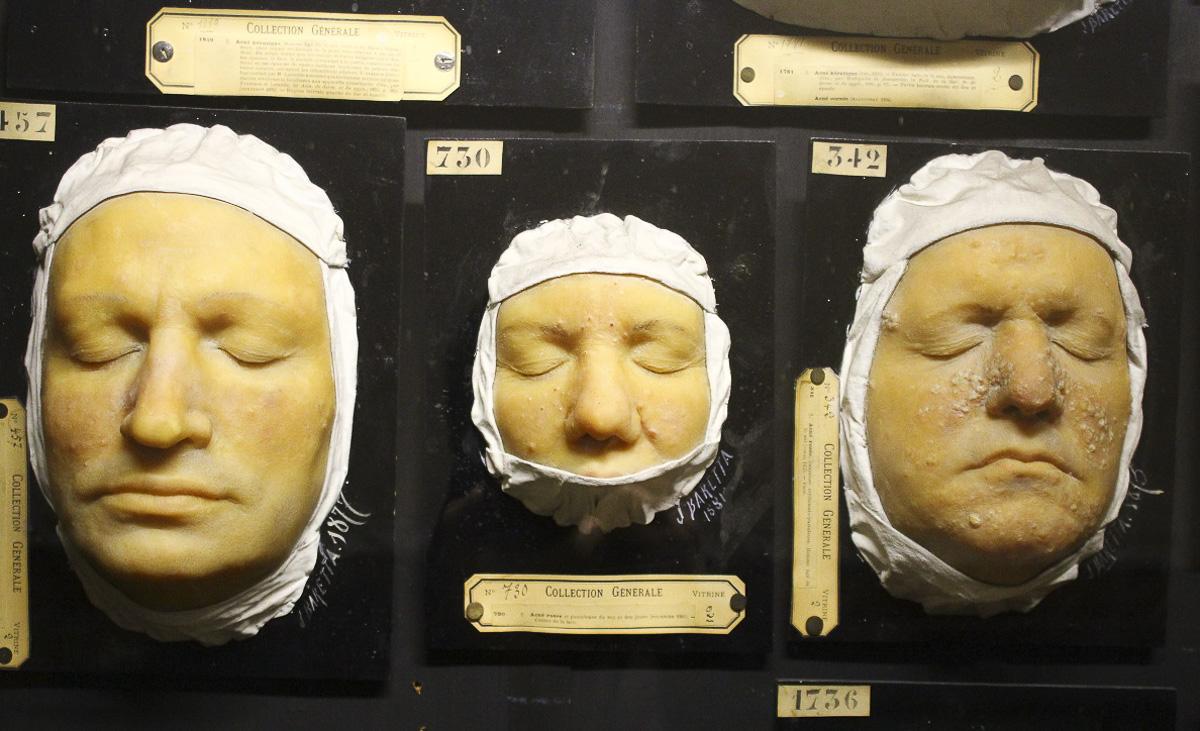 Musée des Moulages - Hôpital St-Louis - APHP
